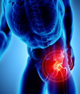 Total Hip Replacement Chapel Hill | NC Orthopaedic Clinic